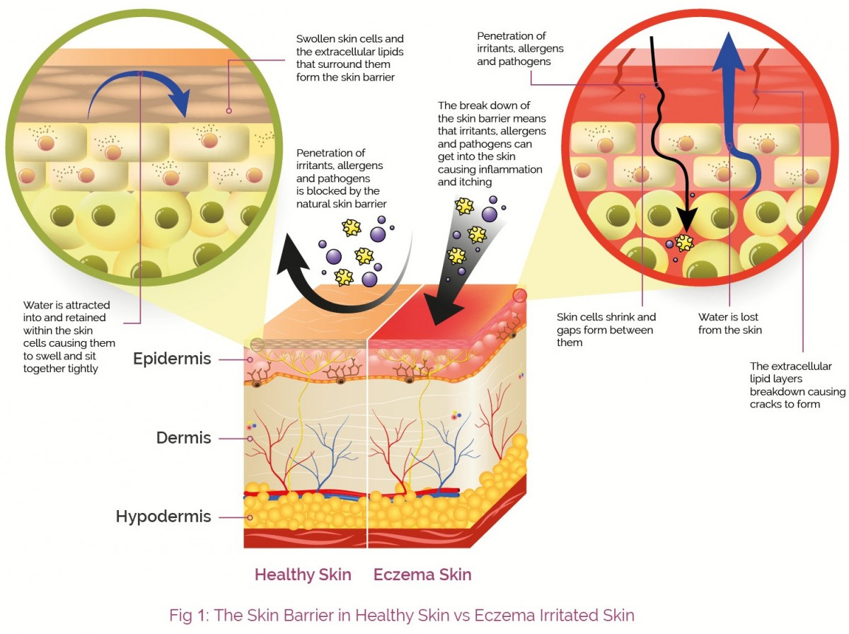 2016_June_AproDerm_Consumer_Website_The_Skin_Barrier_Fig_1