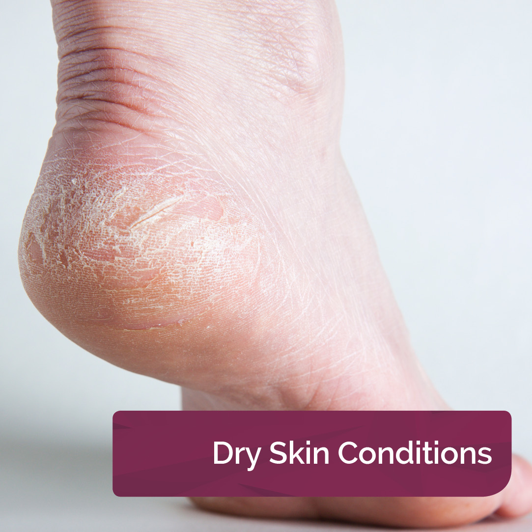 Dry Skin Conditions
