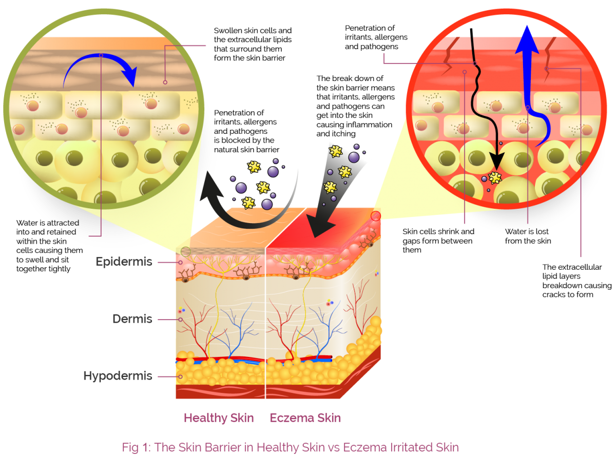 Aproderm The Skin Barrier Our Skin Is Made Up Of Three Layers