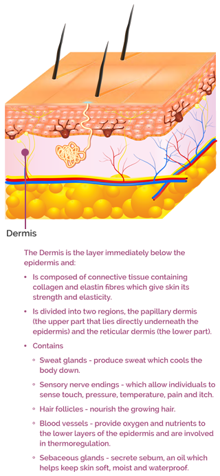 AproDerm Dermis infographic mobile version