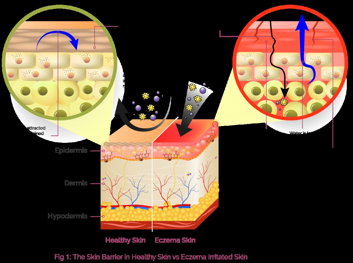 HCP_Skin Barrier