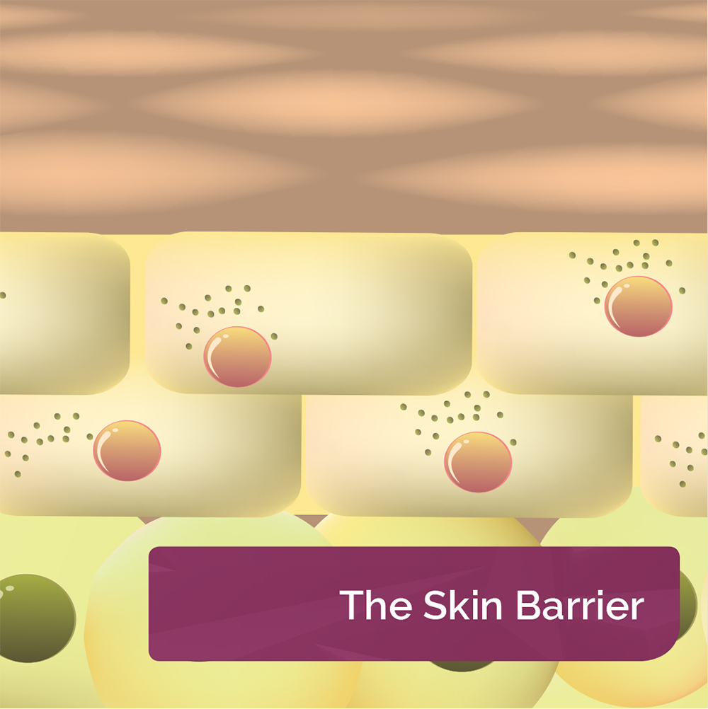 The Skin Barrier