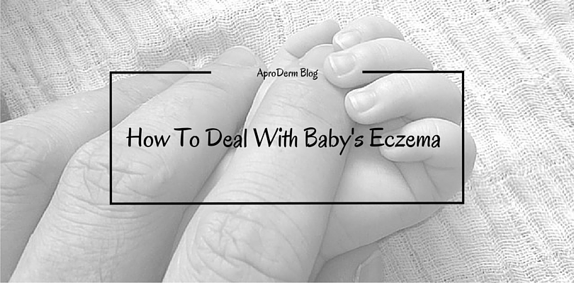 How To Deal With Baby's Eczema header
