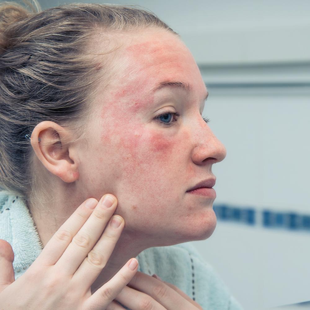 truths about Eczema